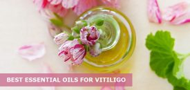 The 11 Best Essential Oils For Vitiligo