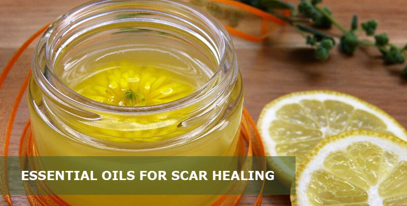 best essential oils for scar healing
