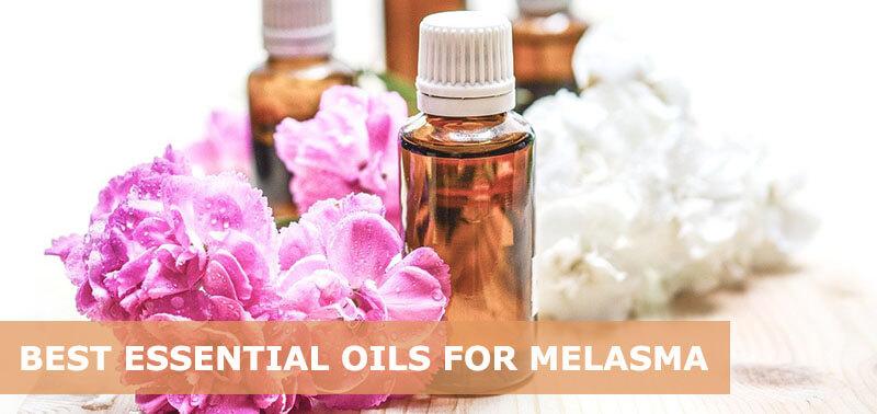 best essential oils for melasma